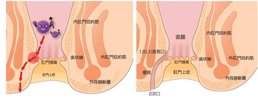痔瘻診断のための参考図